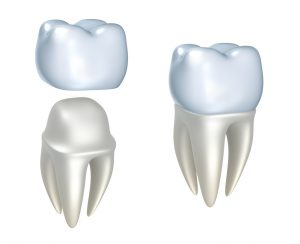 Dr. C. Gary Simmons, your dentist in Spring, TX gives you the info you need on the long-lasting nature of dental crowns.